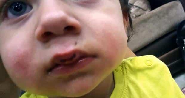 Antalya'da Kemal Özcan ve eşi Seher Özcan otomobillerinde saldırıya uğradı