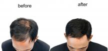 Kaliteli Protez Saç Nasıl Anlaşılır?